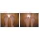 Valgus Pro - фиксатор для пальца фото 7 — OrthoSmiles